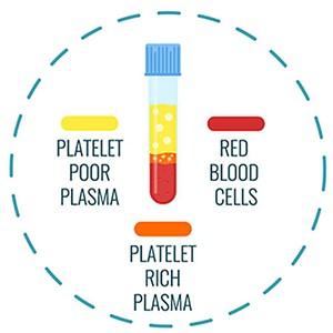 prp treatment process